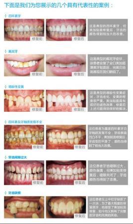 如维生素 a,维生素 d和钙磷的缺乏等; 3, 局部因素:常见于乳牙根尖周