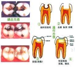 蛀牙怎么办_蛀牙引起牙痛怎么办