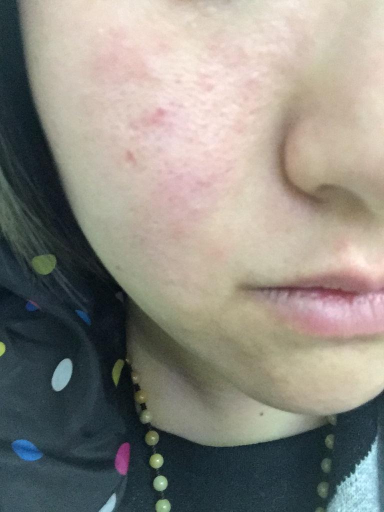 皮肤干燥脱皮怎么办 激素脸排毒要脱皮几次