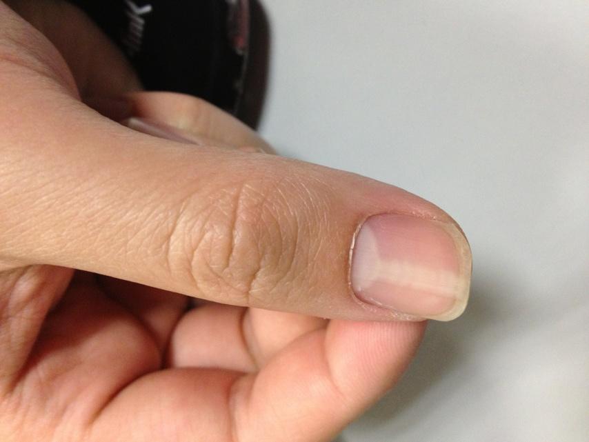 梦见大拇指指甲坏了