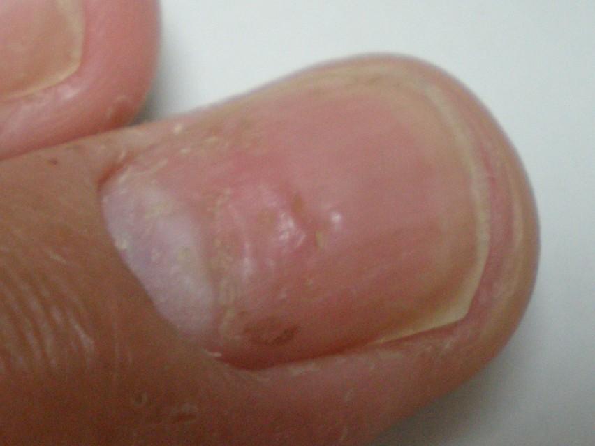 脚气也好灰指甲也好都是真菌病毒感染所致