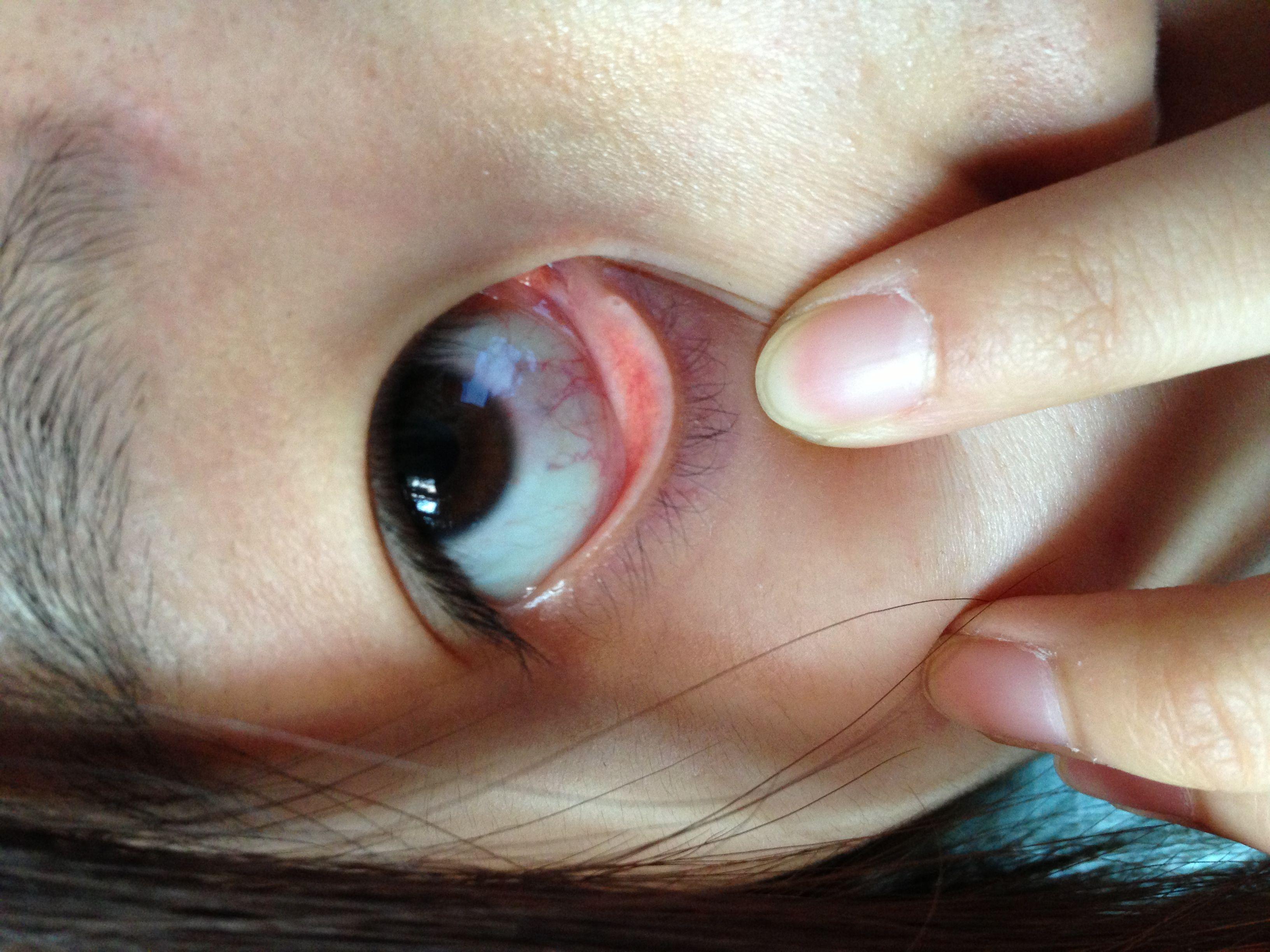 眼睛除了原有的红眼病眼睛有红血丝是结膜炎的对之前戴隐形眼镜得过图片