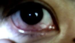 第一次带美瞳摘下后红血丝图片