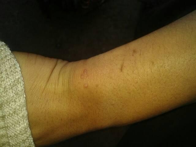 手腕上涨猴子_问:手腕上长猴子怎么办啊!
