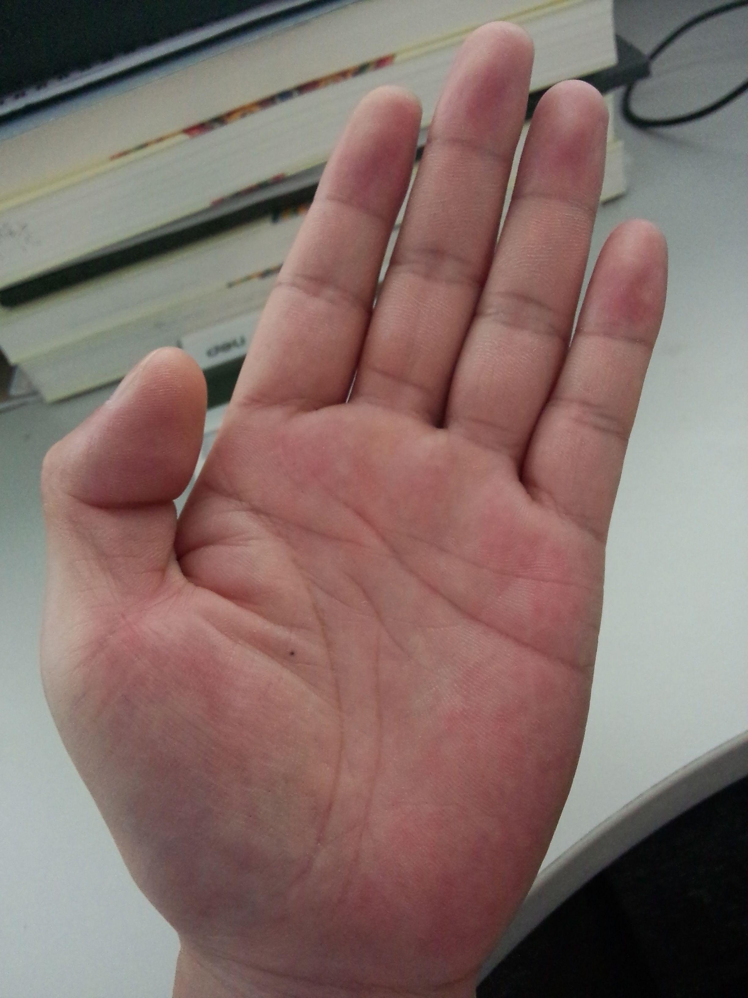 寻找左手掌心有痣的男孩图片