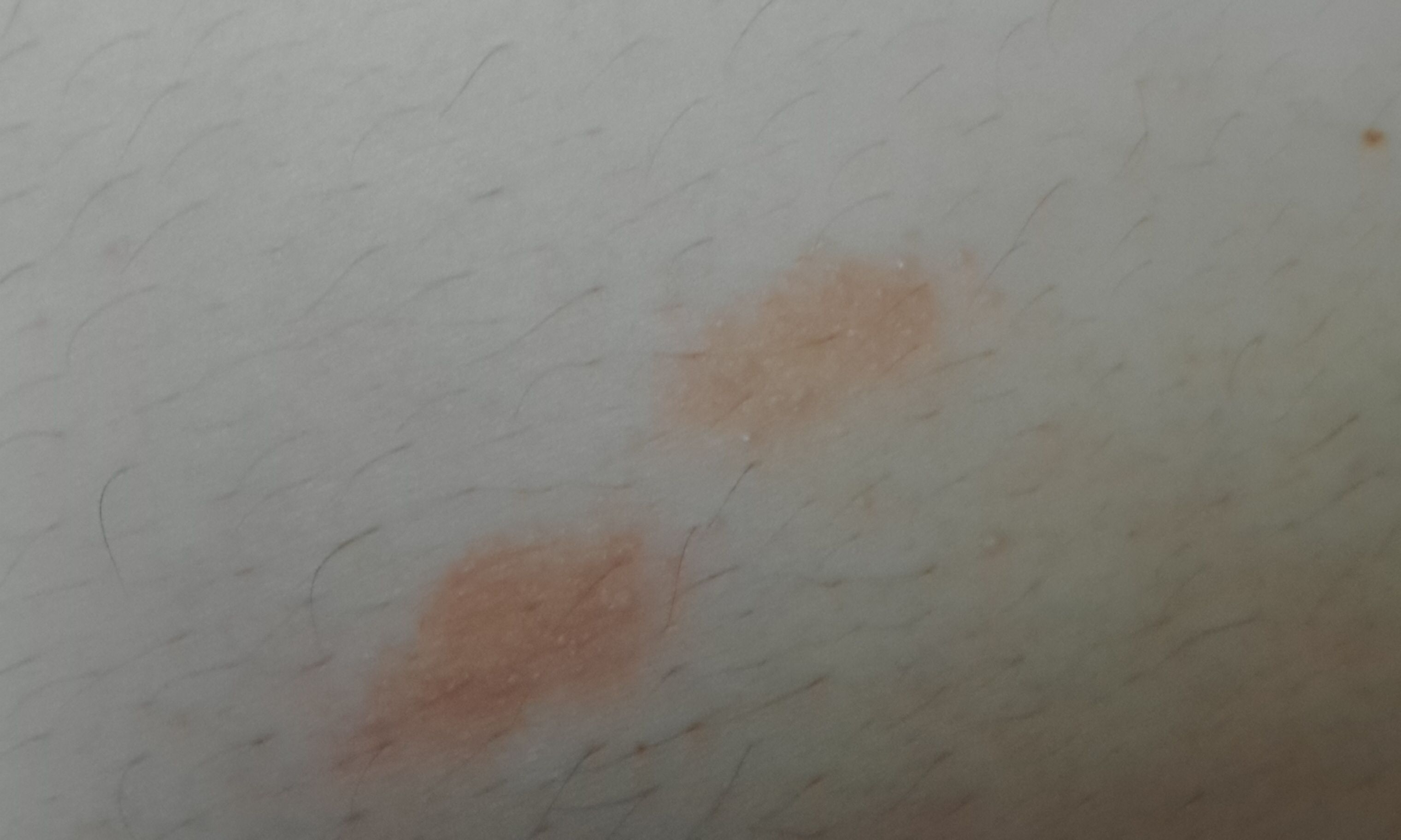 艾丝病早期图片_... 的红斑 艾滋病早期红斑图片