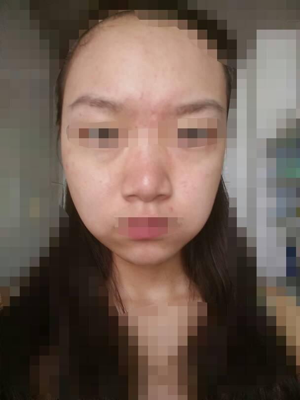 20岁女生 油性皮肤