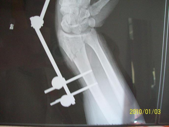 手腕骨折10天,拍片感觉对的不齐,请问这样可以吗?附照片图片