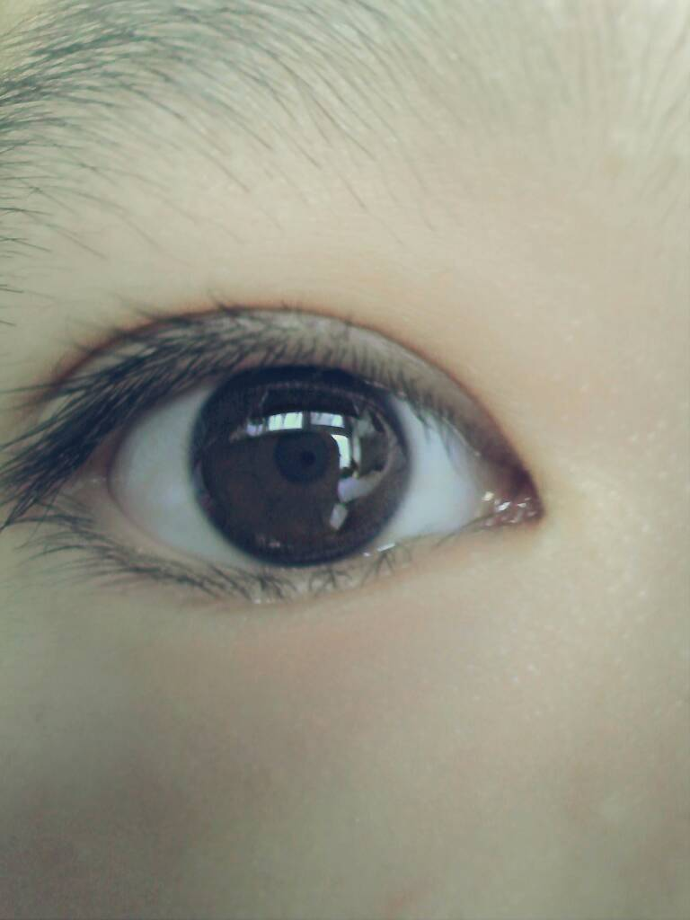 黑眼球上有个白点图片_我的孩子9岁了右眼黑眼珠边上长了一个小白点.眼睛红见光疼是什么病.