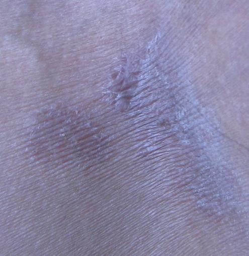 皮肤病的种类囹�a_请问这是什么皮肤病?腹股沟,会阴侧的2.