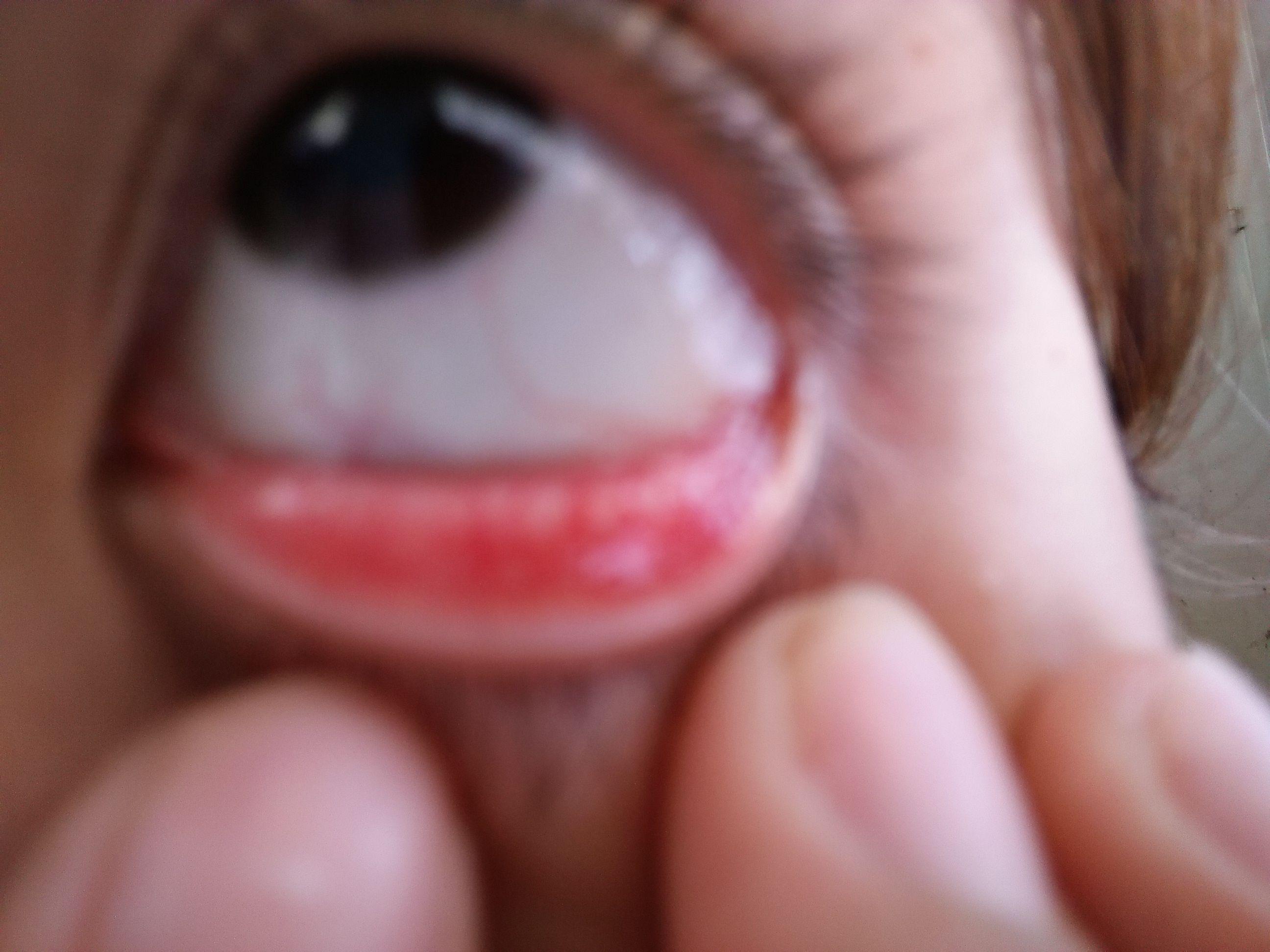 眼珠里有红血丝 怎么消除图片