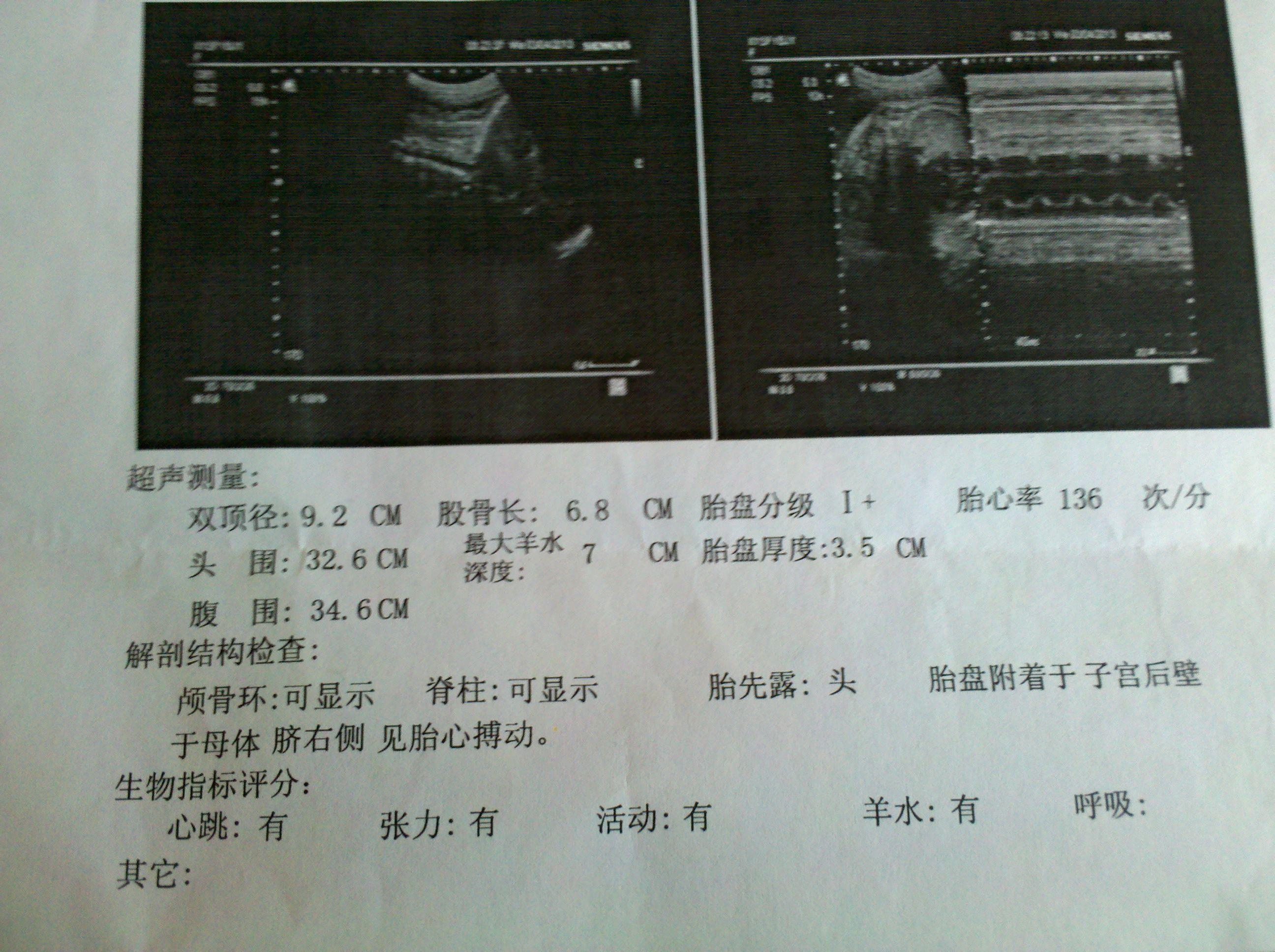 38周b超数据看男女_怀孕38周+4天左右做的B超,胎儿情况_百度知道