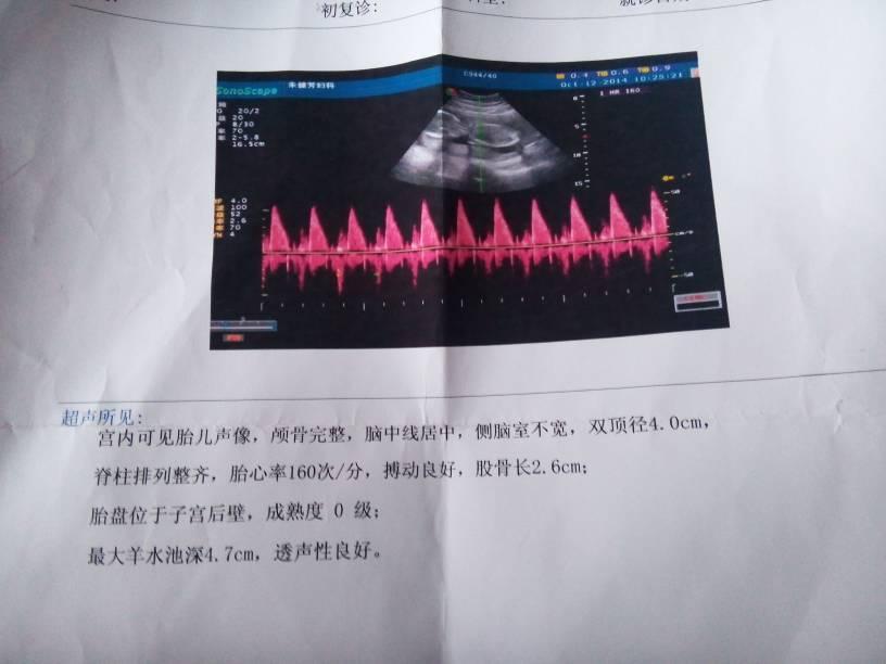 问:孕四个月的b超单,能看出男孩女孩图片