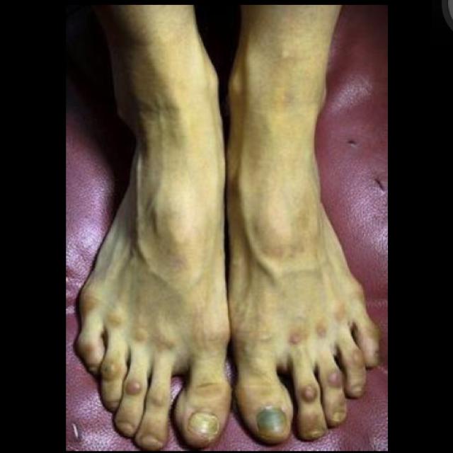 学习芭蕾的女生脚是什么样的?