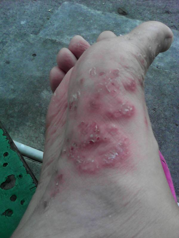 脚气是一种浅表型的真菌感染