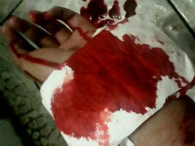 吵架了好多次,大动脉差点割坏了,和他导致出血喝药自杀胃自杀,舞蹈性感金巧巧图片
