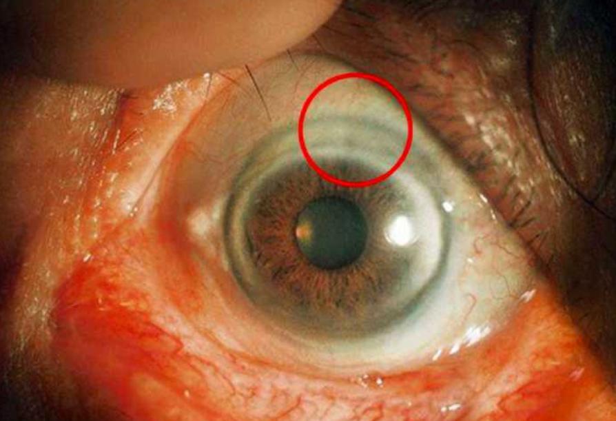 白内障眼球图片_二,屈光介质 老人常的眼睛疾病有老年环,白内障和翼状胬肉 老年环