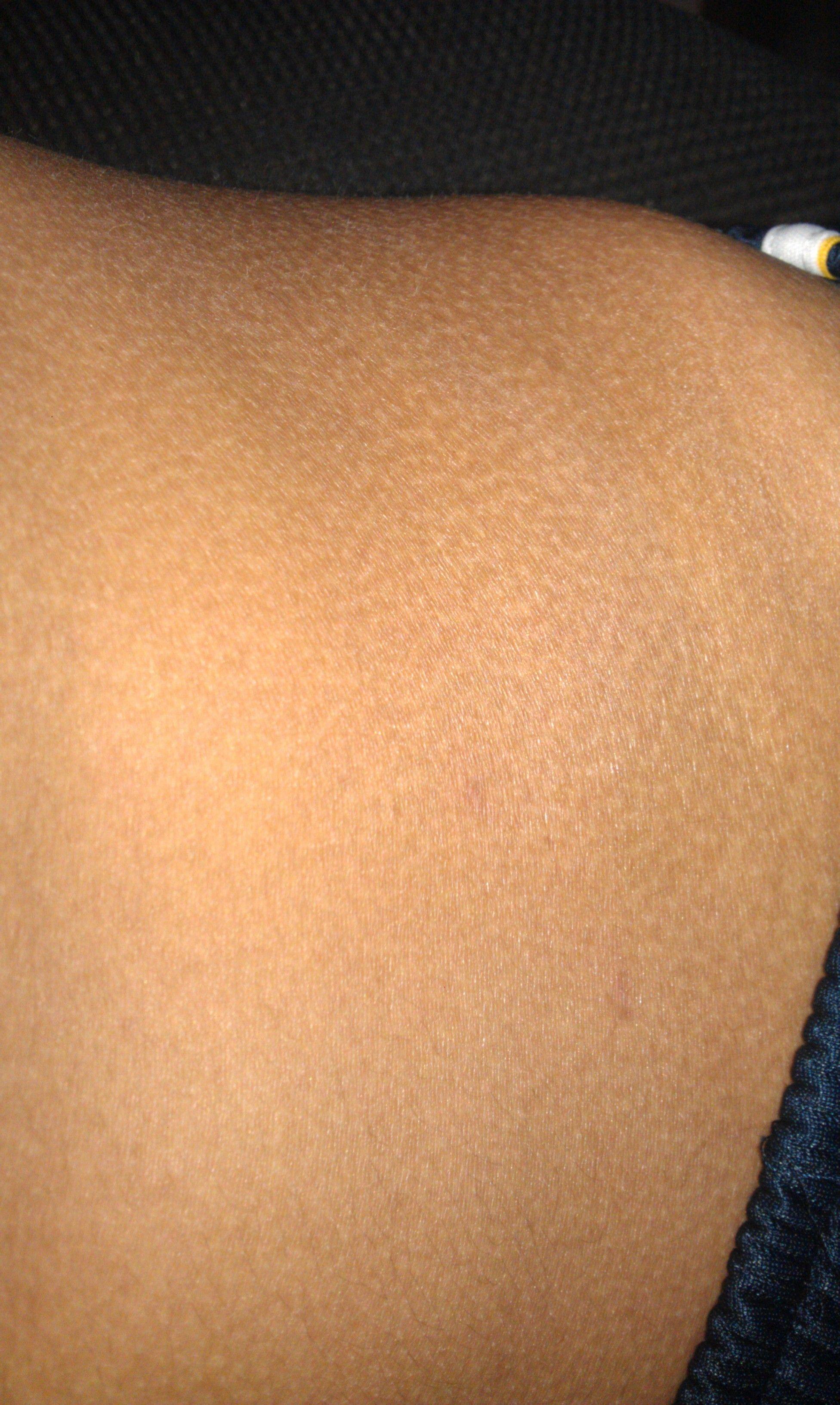 这是皮肤病吗?图片