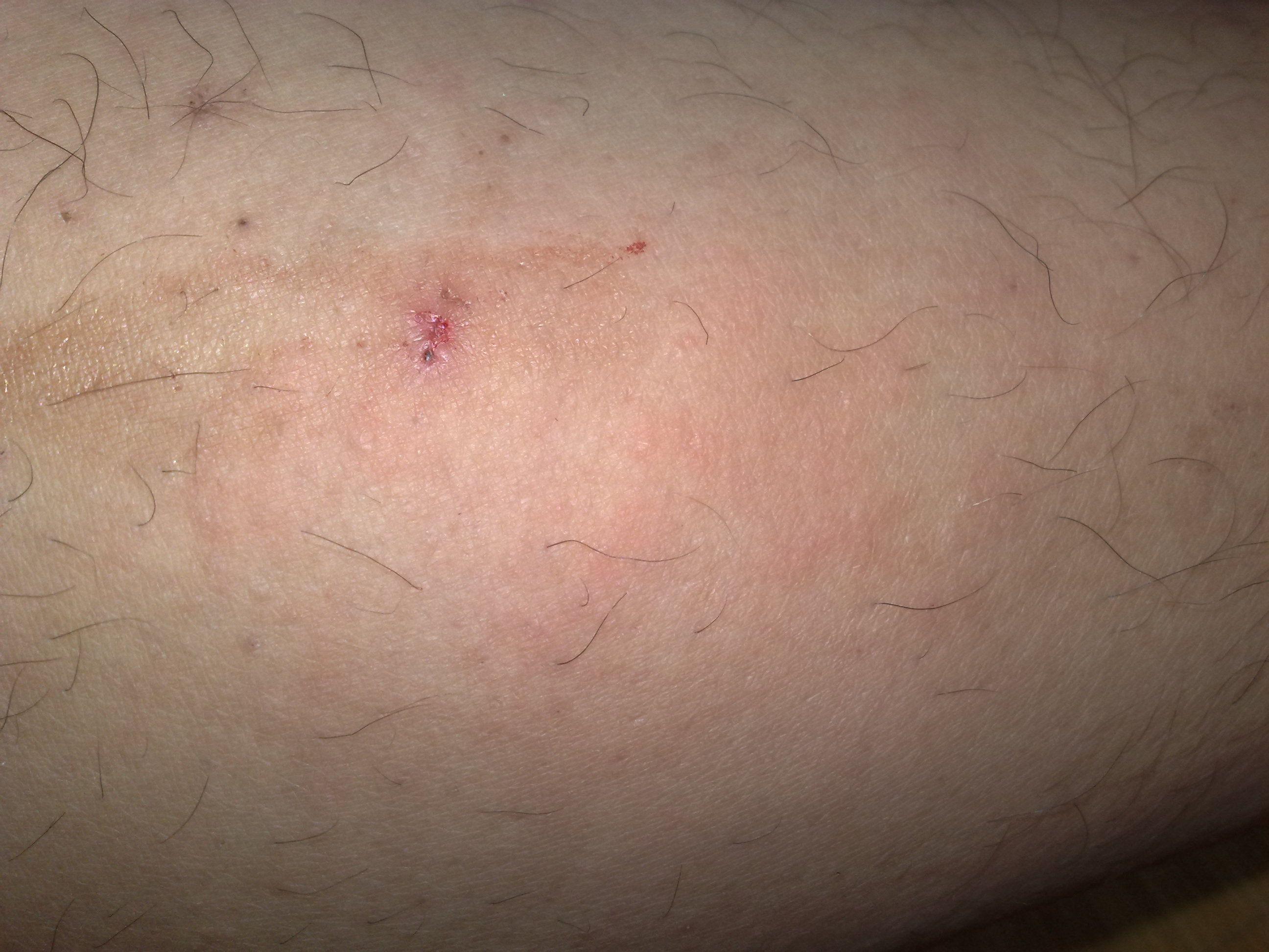 最全皮肤过敏处理方法图片