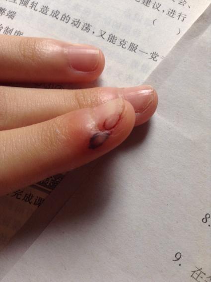 手指流血掉肉 现在里面有淤血图片
