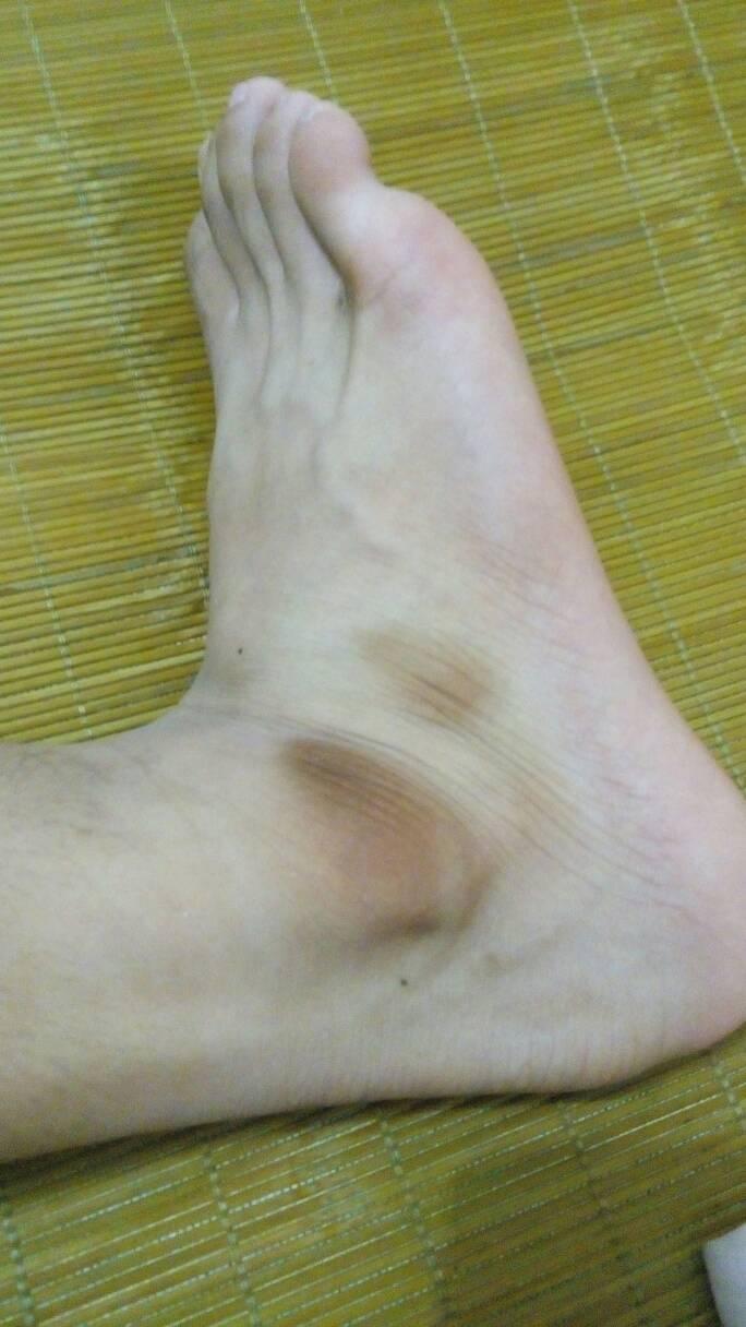 脚整体不黑,就只有凸出来的一块骨头发黑,是皮肤黑不是骨头变黑,胳膊图片