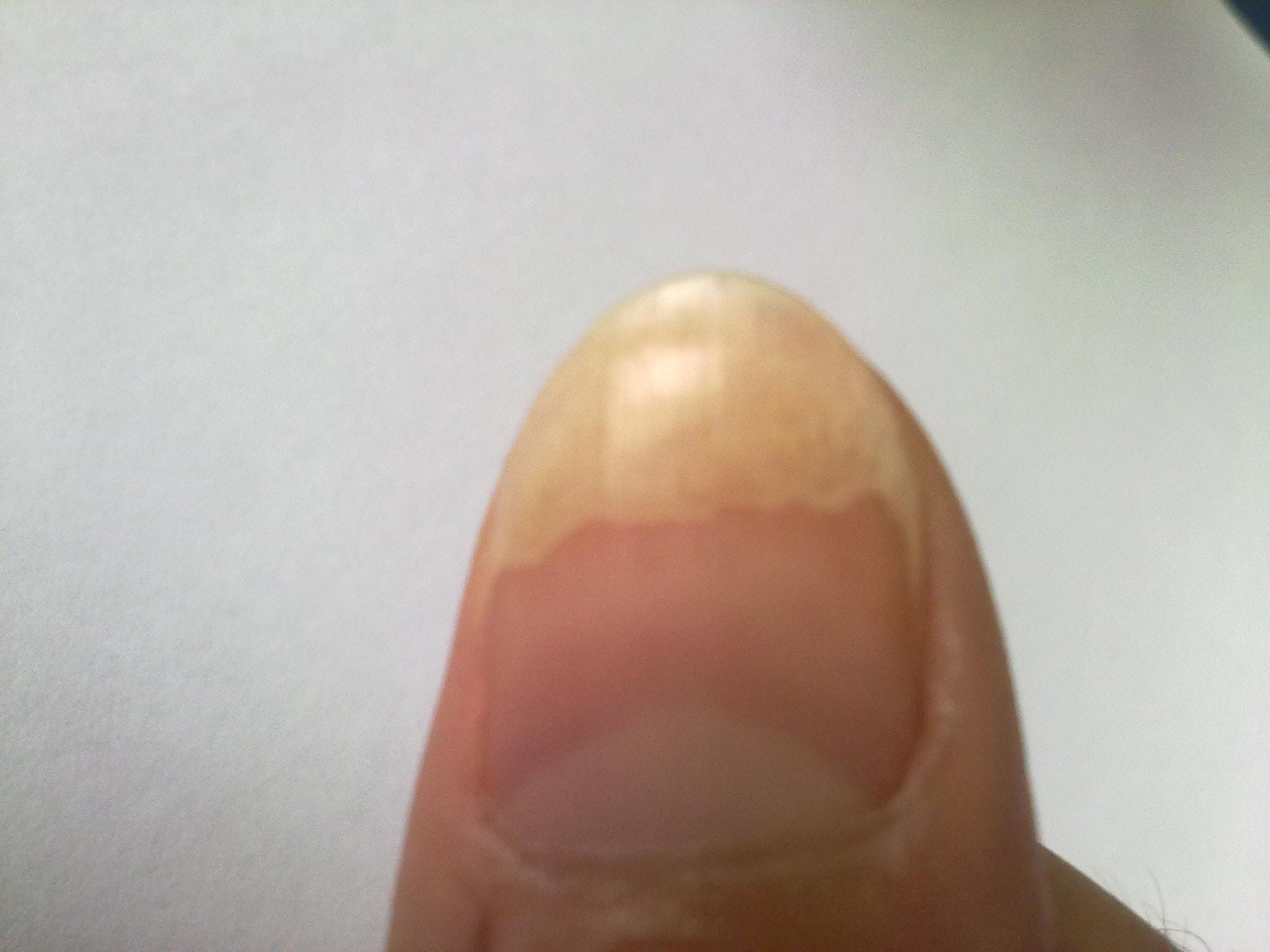 梦见手指甲盖坏了