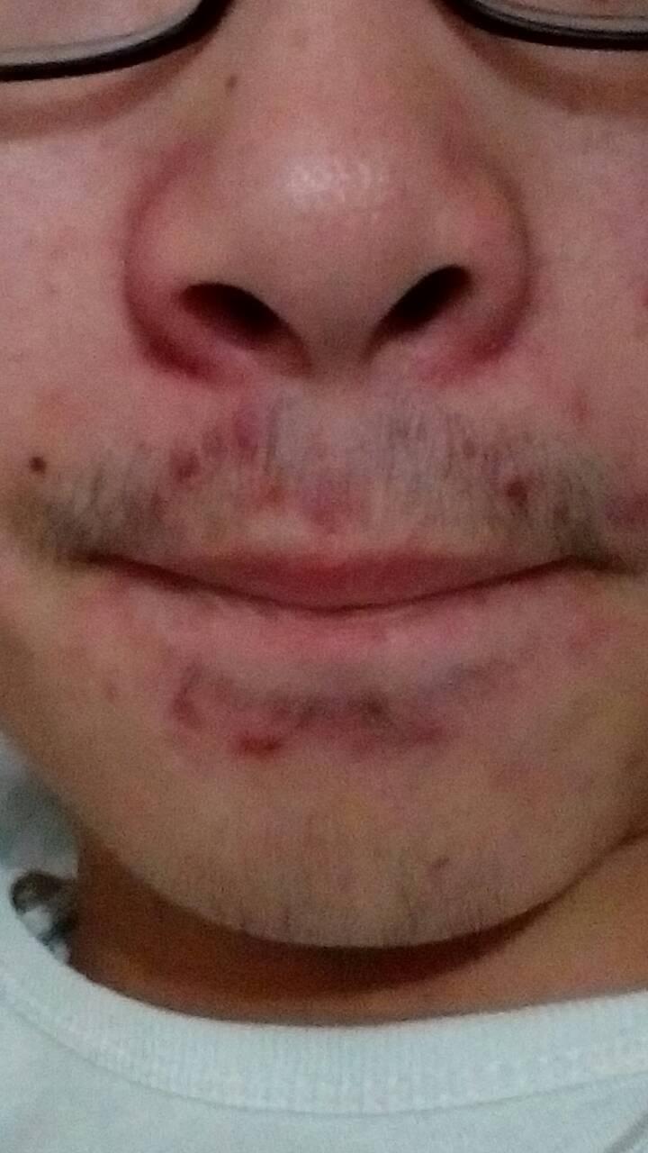 鼻子上长痘痘,红肿,一摸鼻子上都是油,有好几年了,该怎么办