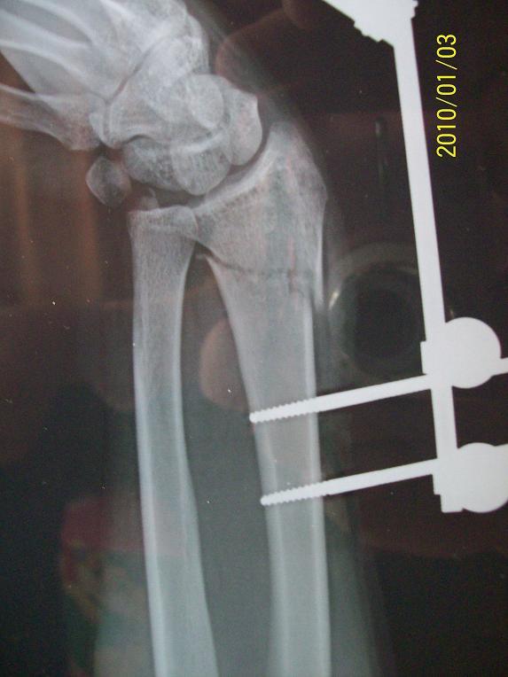 附照片 2009-05-23 左手手腕处骨裂和拍片报告 2 2012-05-23 左手腕舟图片