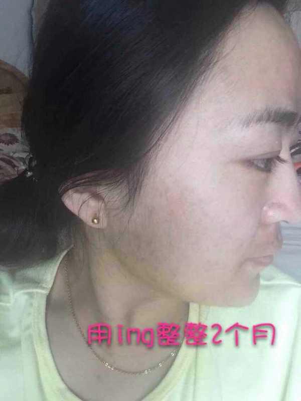 韩国哪些化妆品适合22岁油性皮肤有痘痘的女生用