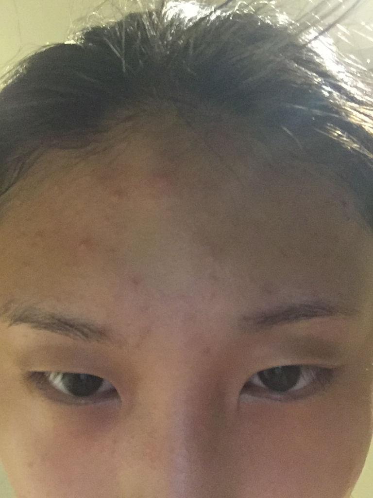 脸上有小米粒疙瘩_这两天脸上长了好多像小米粒一样的痘痘,不疼也不痒