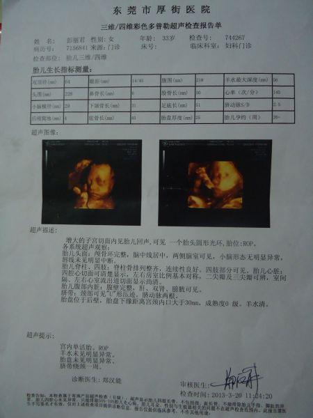 怀孕28周四维彩超图图片