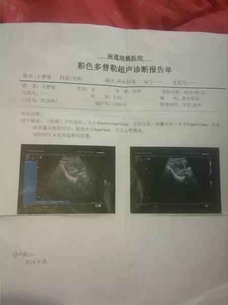 我在6月21号做的b超,现在我想看看宝宝发育的情况.能不能看到呢