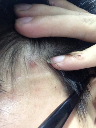 由于天天玩手机,最近经常头疼,头发里长个红红的痘痘图片
