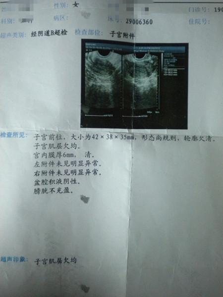 盆腔积水_每次妇检医生都说我有盆腔积液,但检查后没有妇科病,究竟是什么回事?