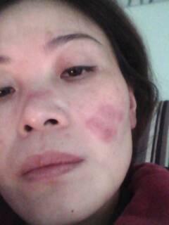 请问专家:我这脸上长的是冻疮还是红斑狼疮