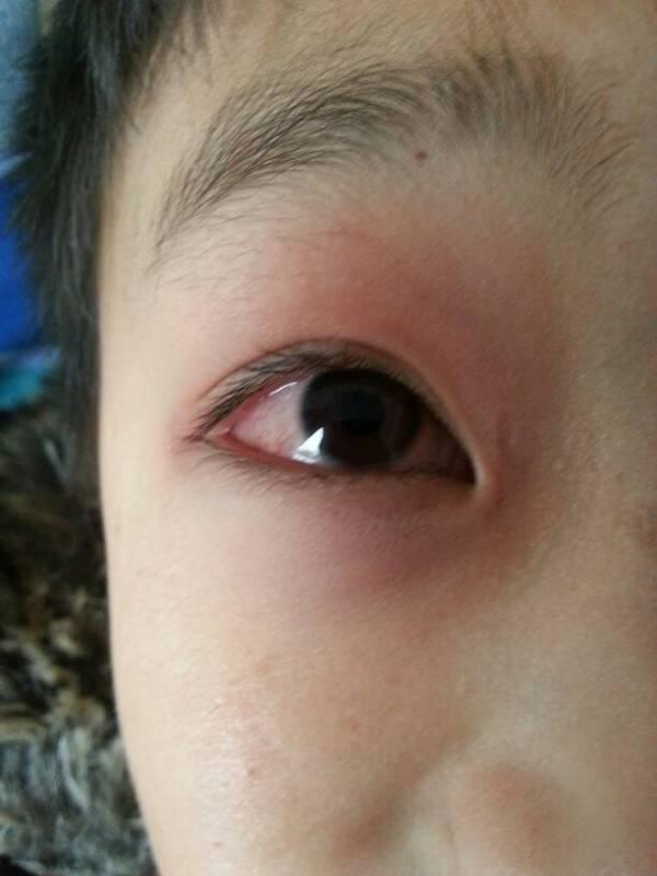 眼睛充血_儿子昨天回家有一只眼睛红肿,眼球充血,是