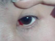 眼睛充血但是不痛不痒_眼睛充血左眼球有血块很红已经3天了