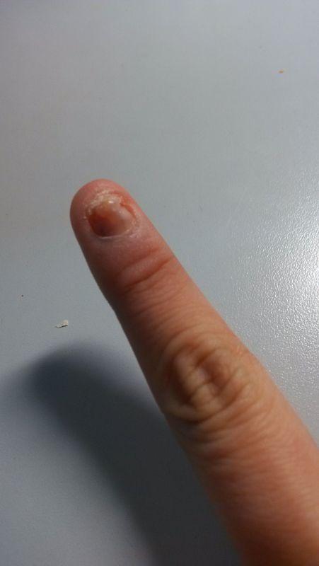 门夹到了,后来手指甲掉了,根部长出来的指甲是畸形的,非常难