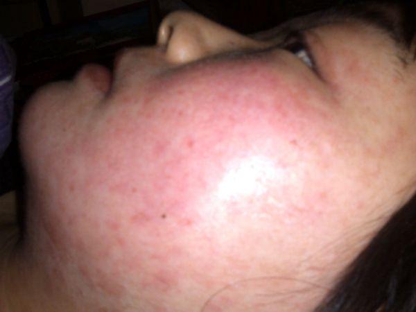 皮肤严重过敏怎么办?急!到底是什么原因?