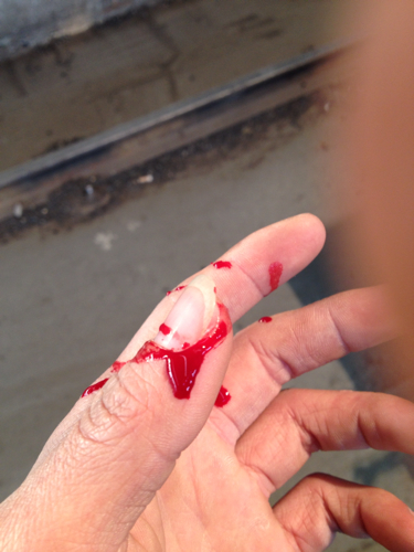 很久的小伤口被我把疤弄掉了图片