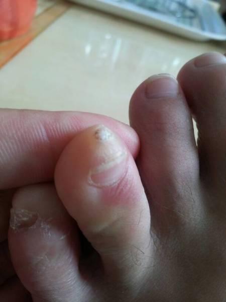 脚趾头抽筋怎么办