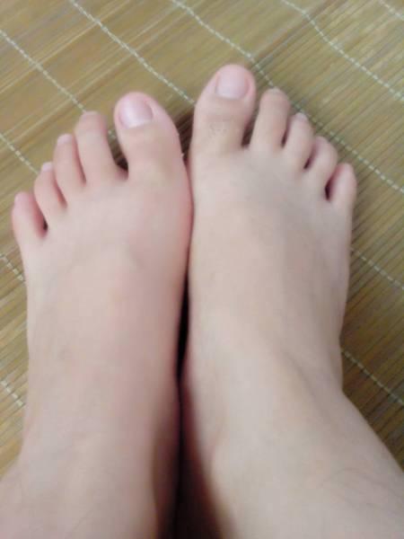 脚指甲变白怎么回事