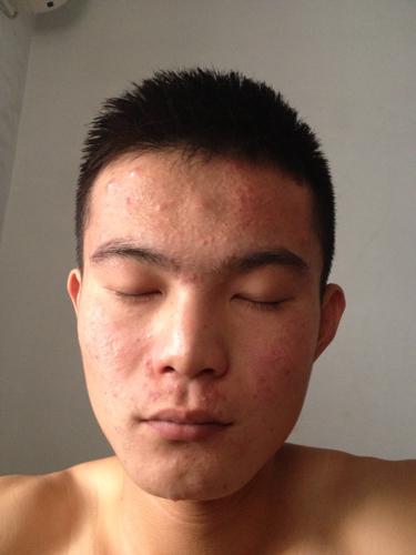 脸上有小米粒疙瘩_脸上一层小米粒痘痘白色的,不疼也不痒,挤出来是白色的米粒