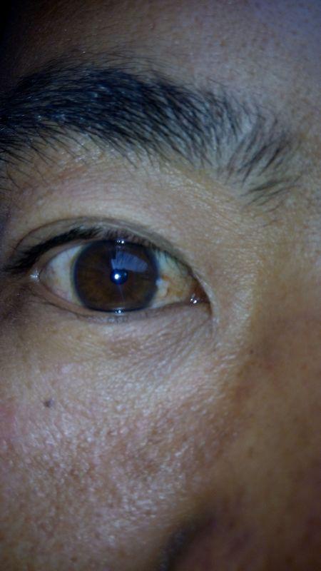 眼球上长了个白色疙瘩_你好我眼球上起了一个小疙瘩怎么回事?开始
